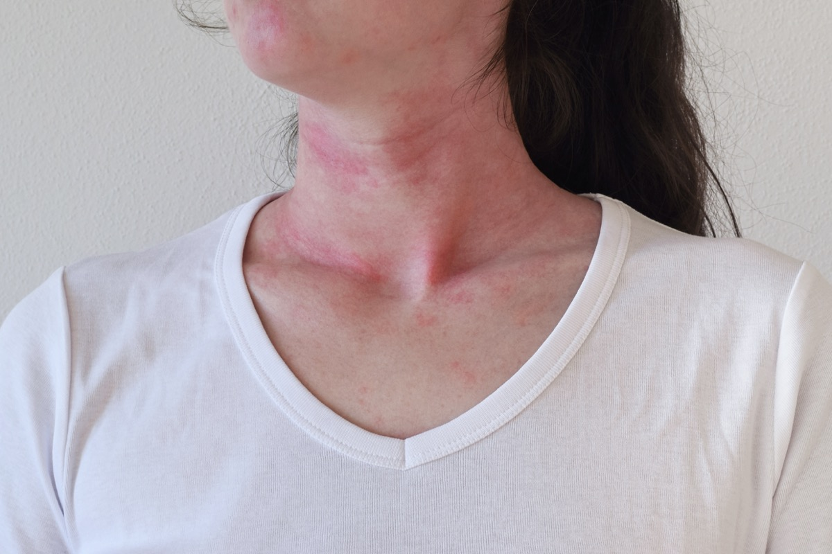Woman Breaking Out In Hives From An Allergic Reaction Hand Sanitizer Germs