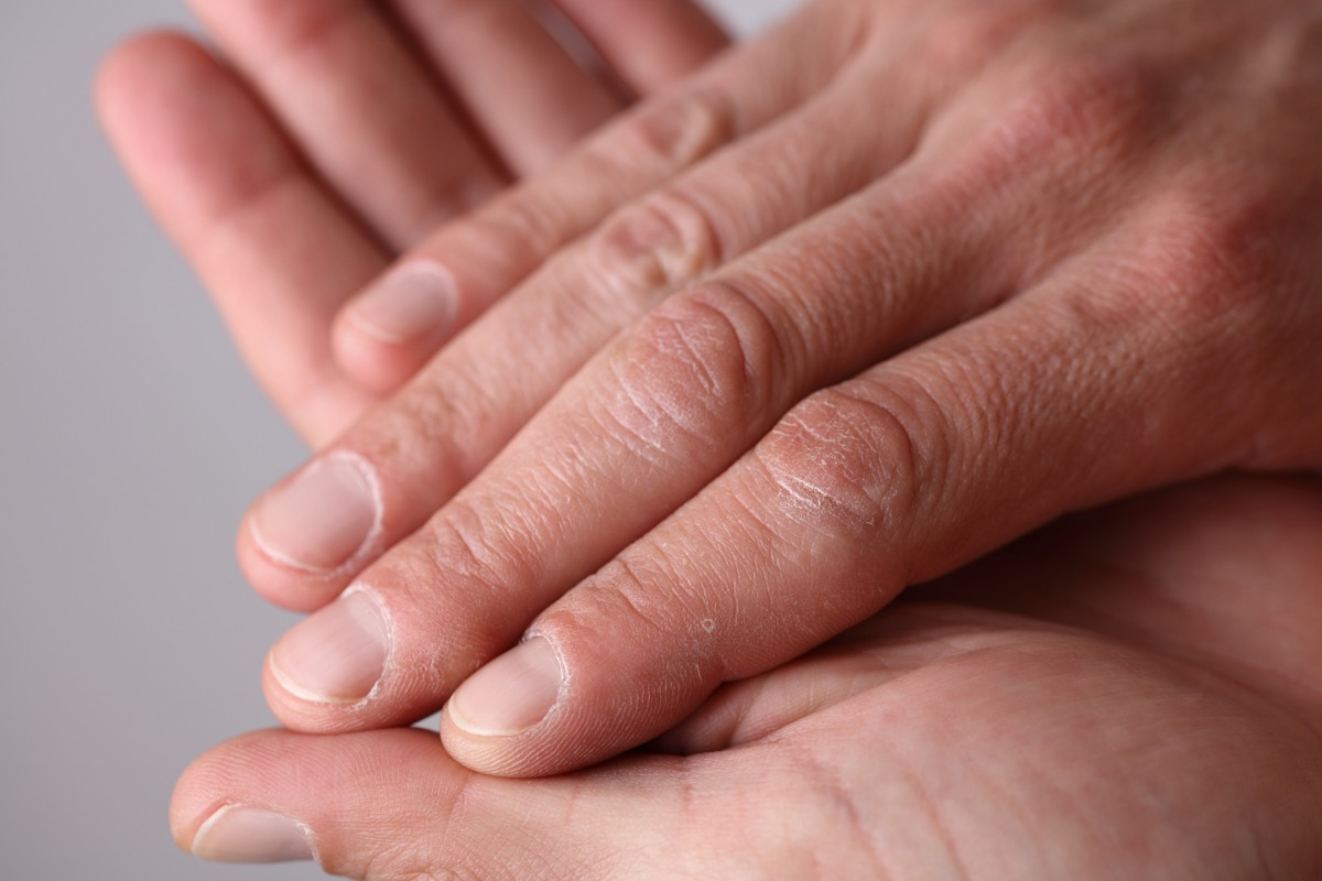 Male hands close up, dry skin, winter skin care concept
