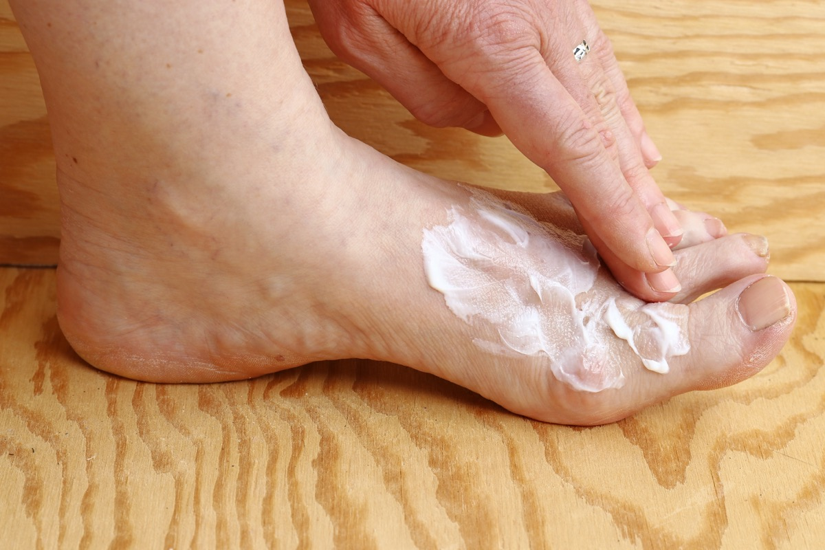 Woman Using Foot Cream For a Fungal Infection Silent Health Symptoms