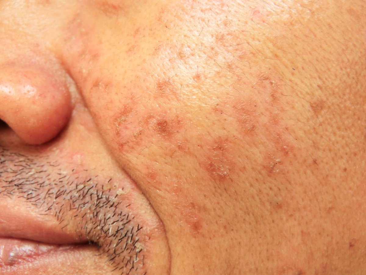 adult acne middle aged man