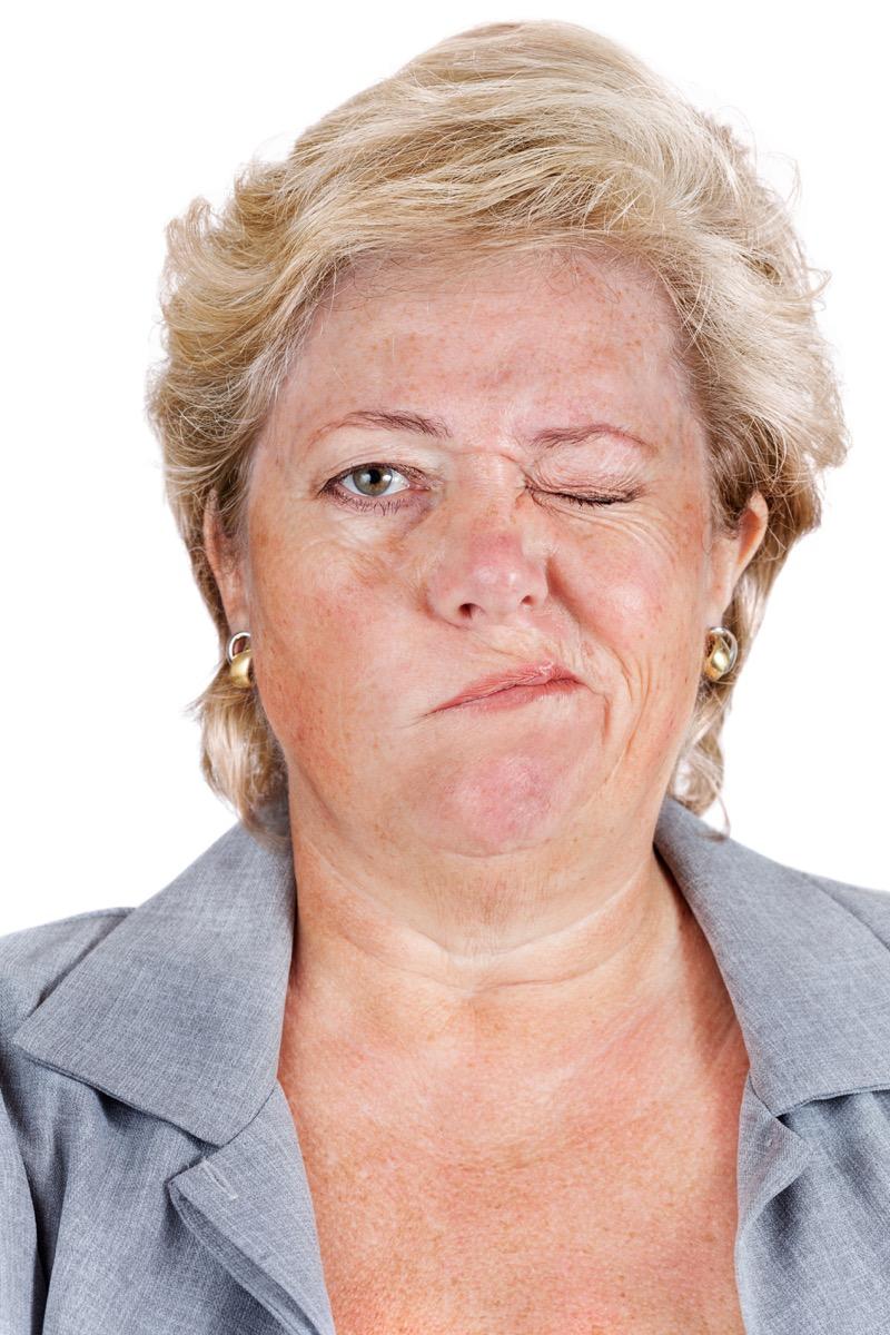 Woman with Facial Paralysis Lyme Disease Symptoms
