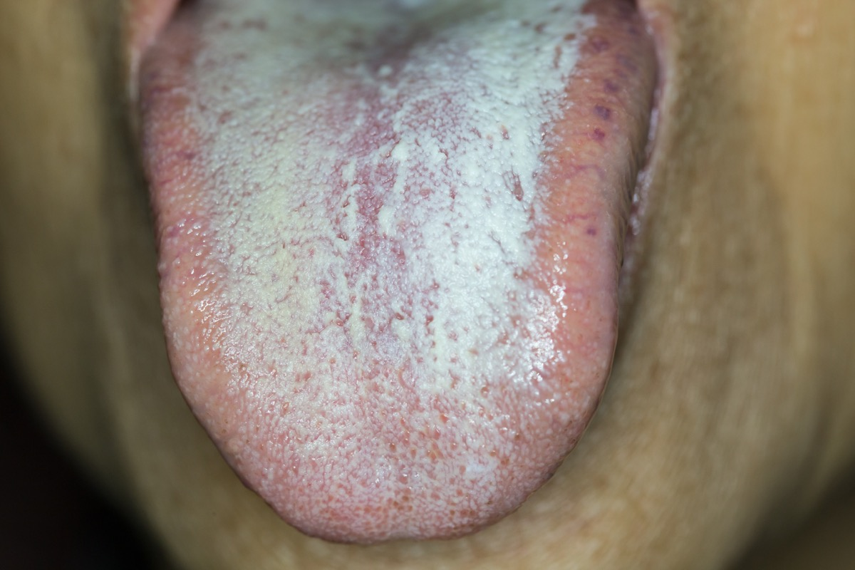 Person with a white tongue from diabetes tongue health