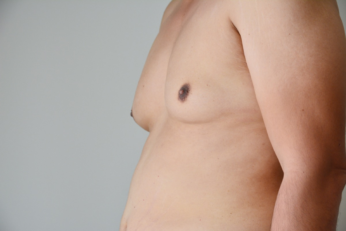 man with breast tissue and belly, subtle symptoms of serious disease
