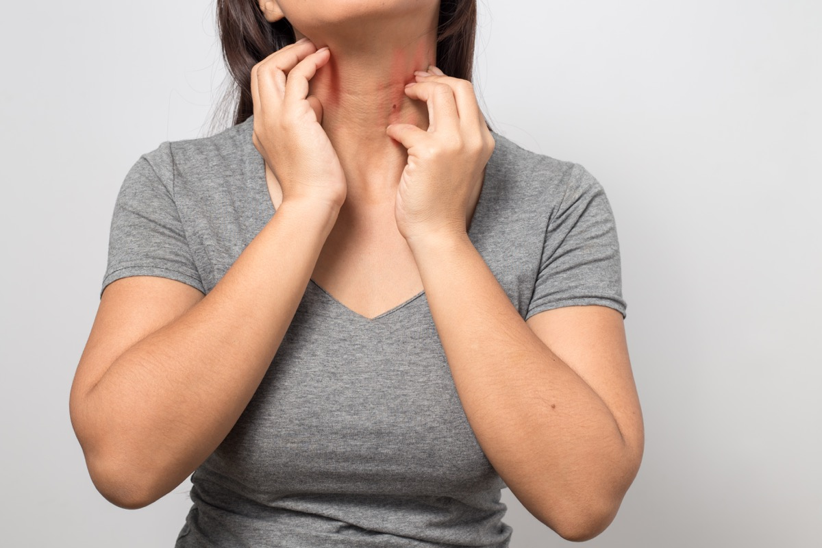 woman scratching at the skin on her neck