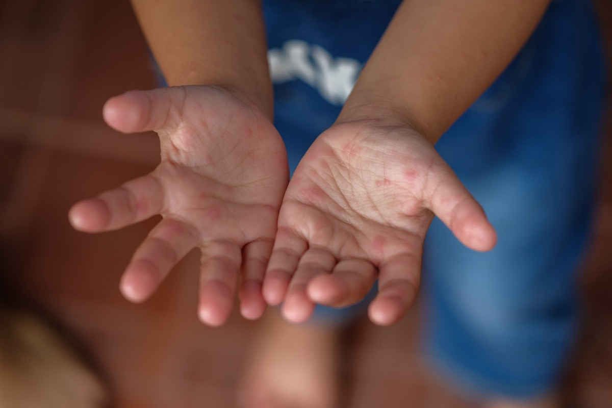 hand foot mouth disease, classroom germs