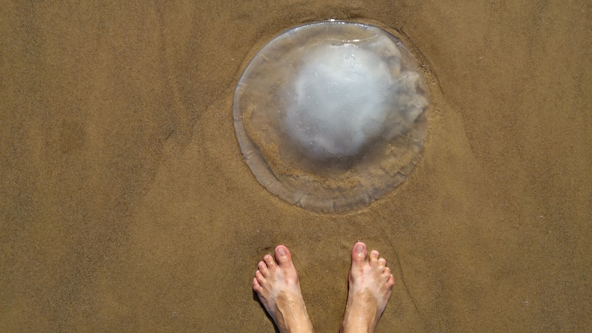 Person Encountering a jellyfish on the beach sea creatures that sting