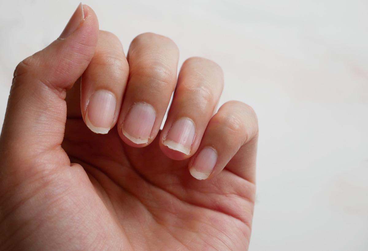 Closeup of chipped nails