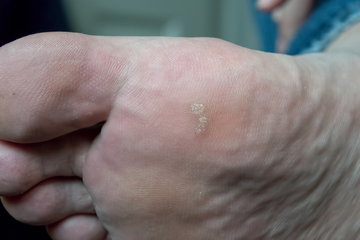 older man's foot with warts, contagious conditions