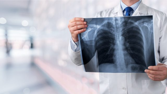 doctor holding up an x ray of lungs