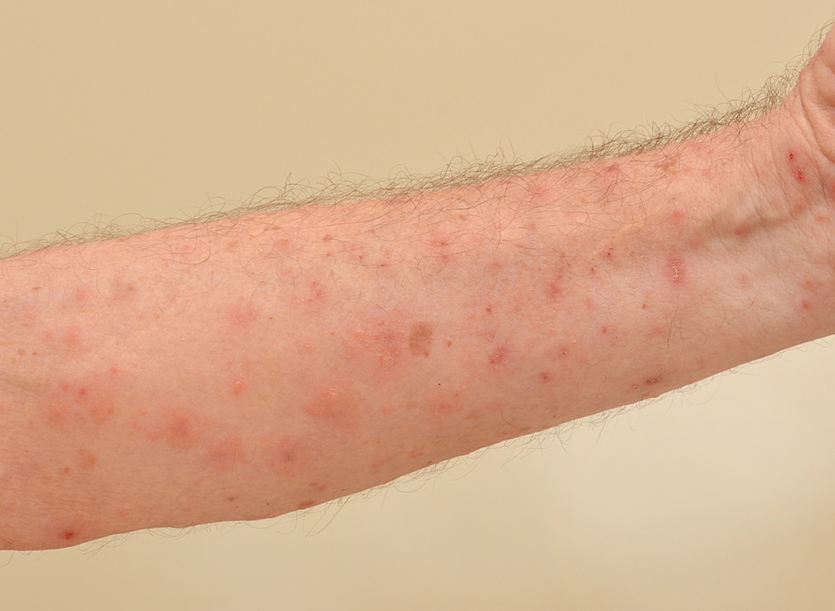 man with scabies bites on arm, contagious conditions