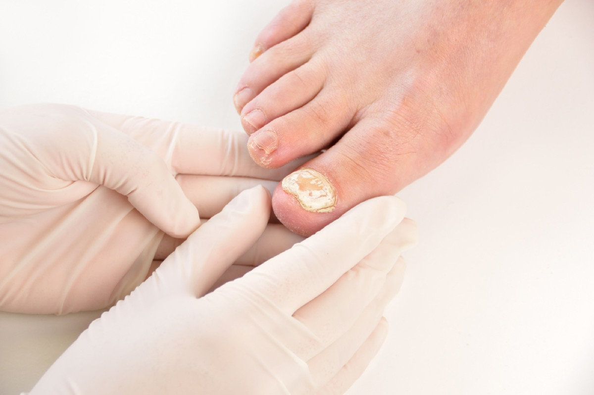 doctor examining big toe with nail fungus, contagious conditions