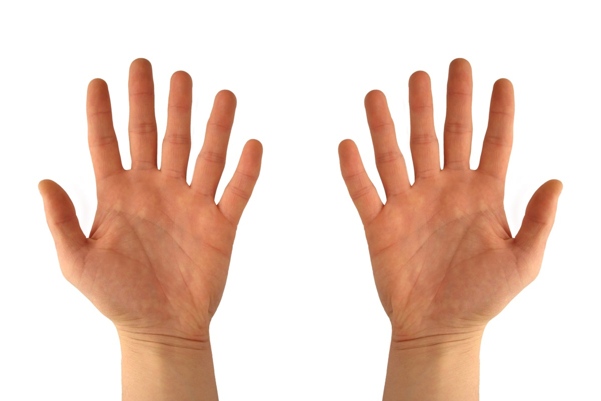 two hands with 6 fingers
