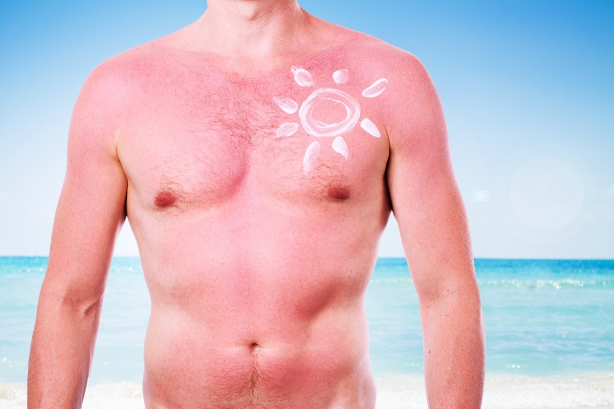 Man making himself a sun-shaped sunburn tattoo