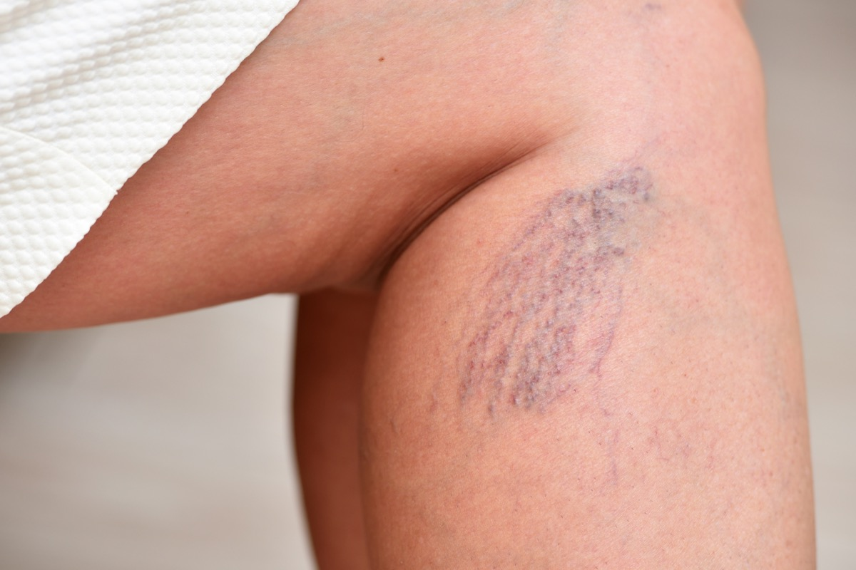 Woman with visible blood vessels on her legs