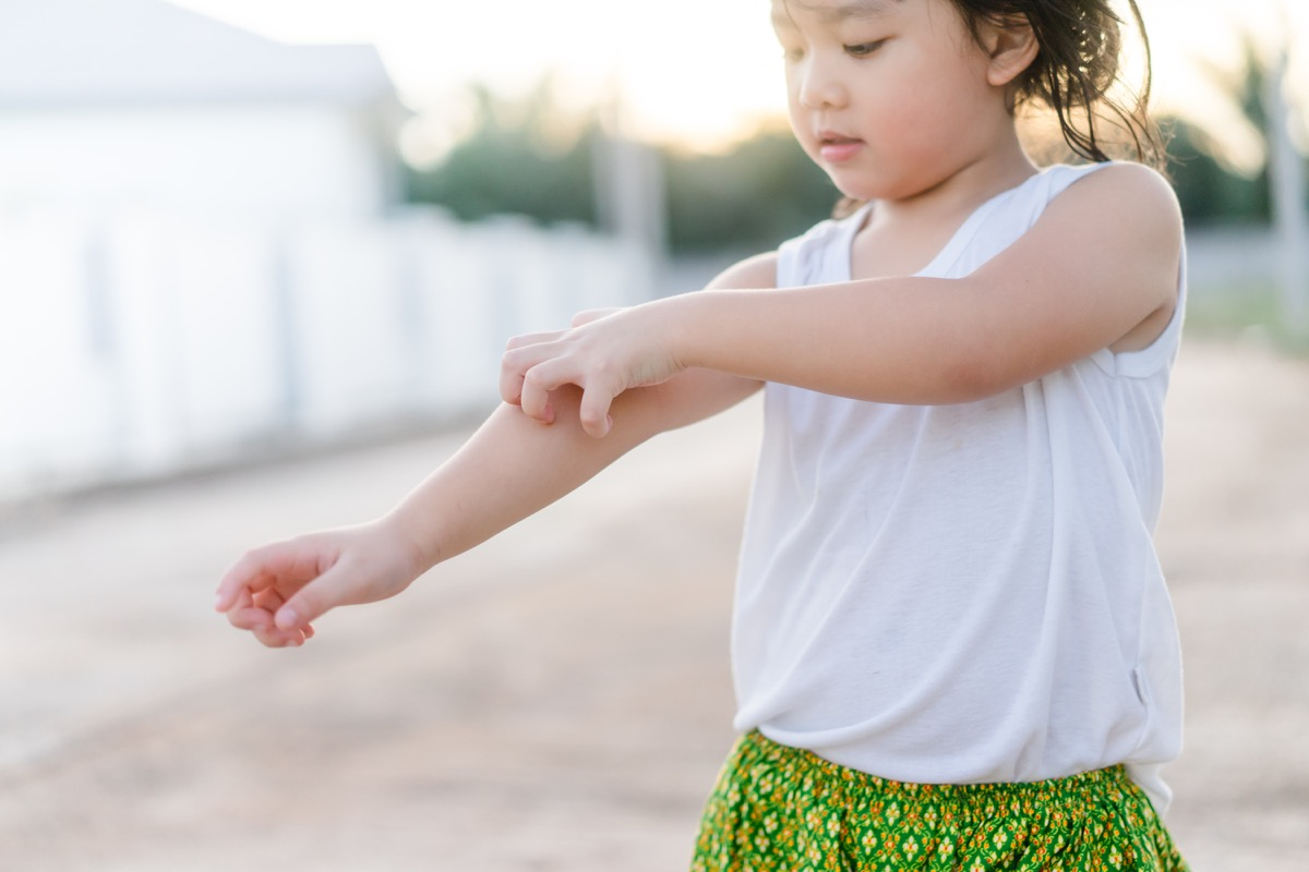 little girl scratching her arm