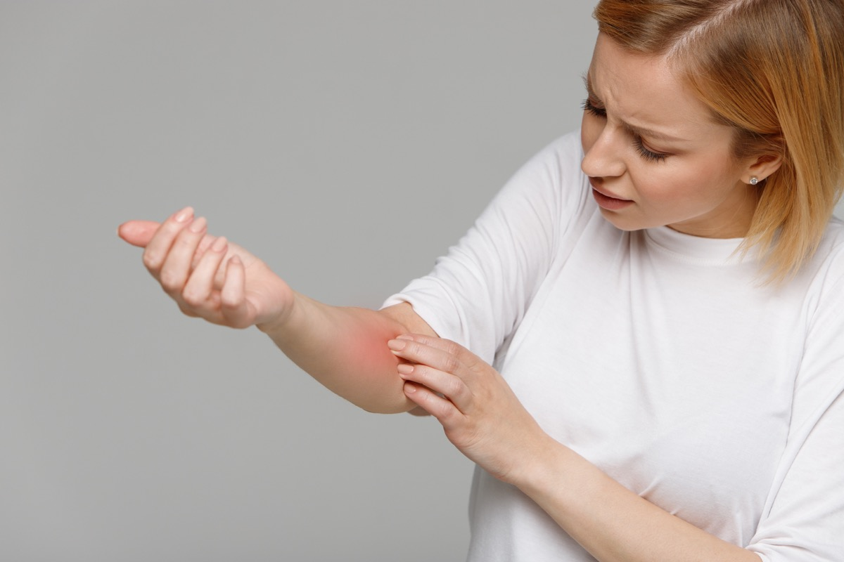 Woman looking at the red inflamed skin on her arm