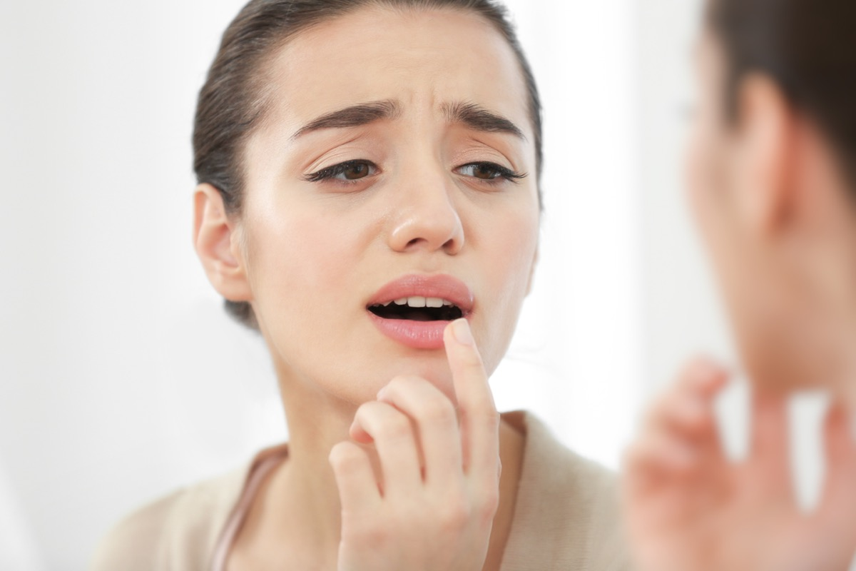 Woman putting cream on her dry lips