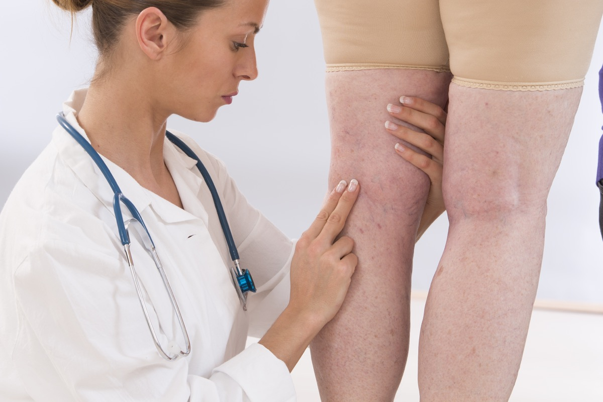Doctor check a patient's swollen legs and veins