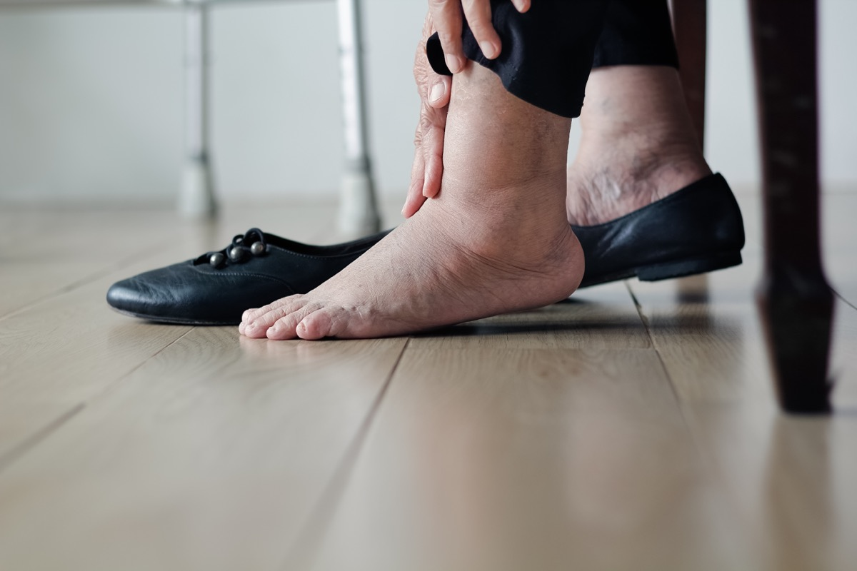 Woman with swollen ankle foot