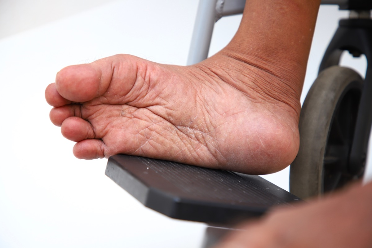man's foot from polio