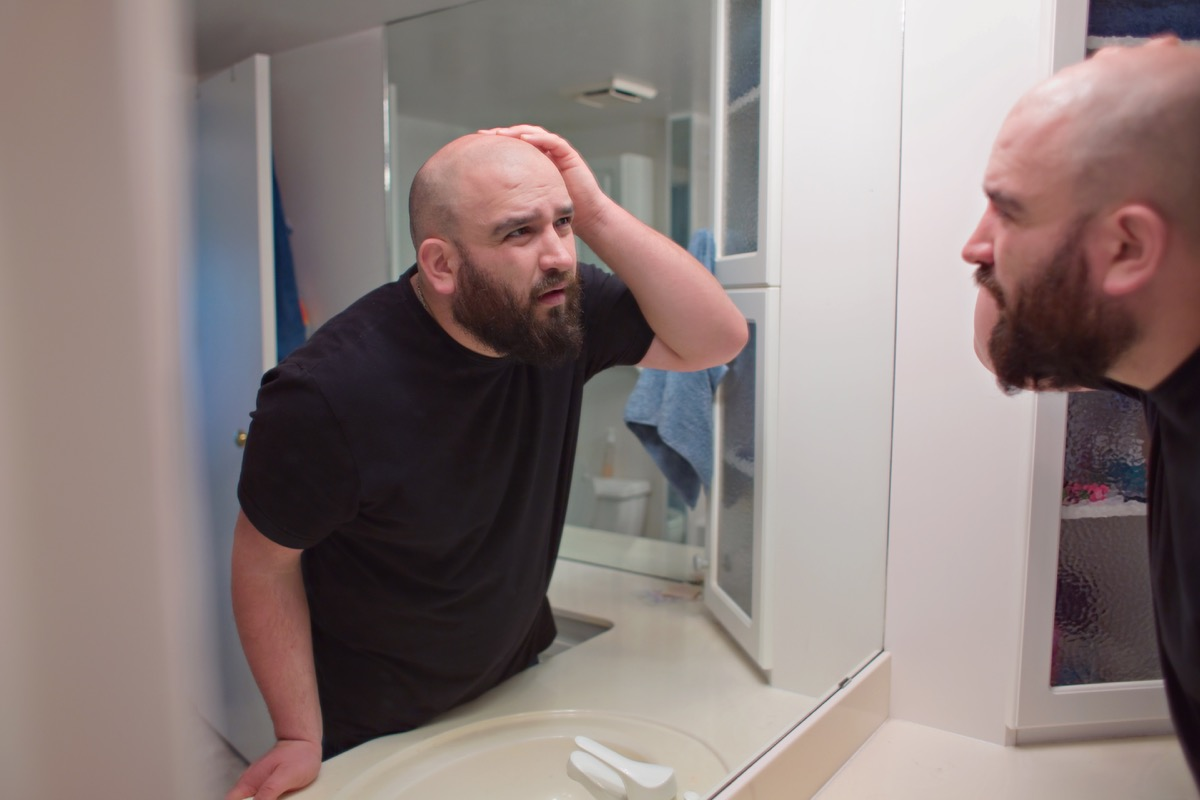 an unhappy man looking in the mirror touching the missing hair on top of his head