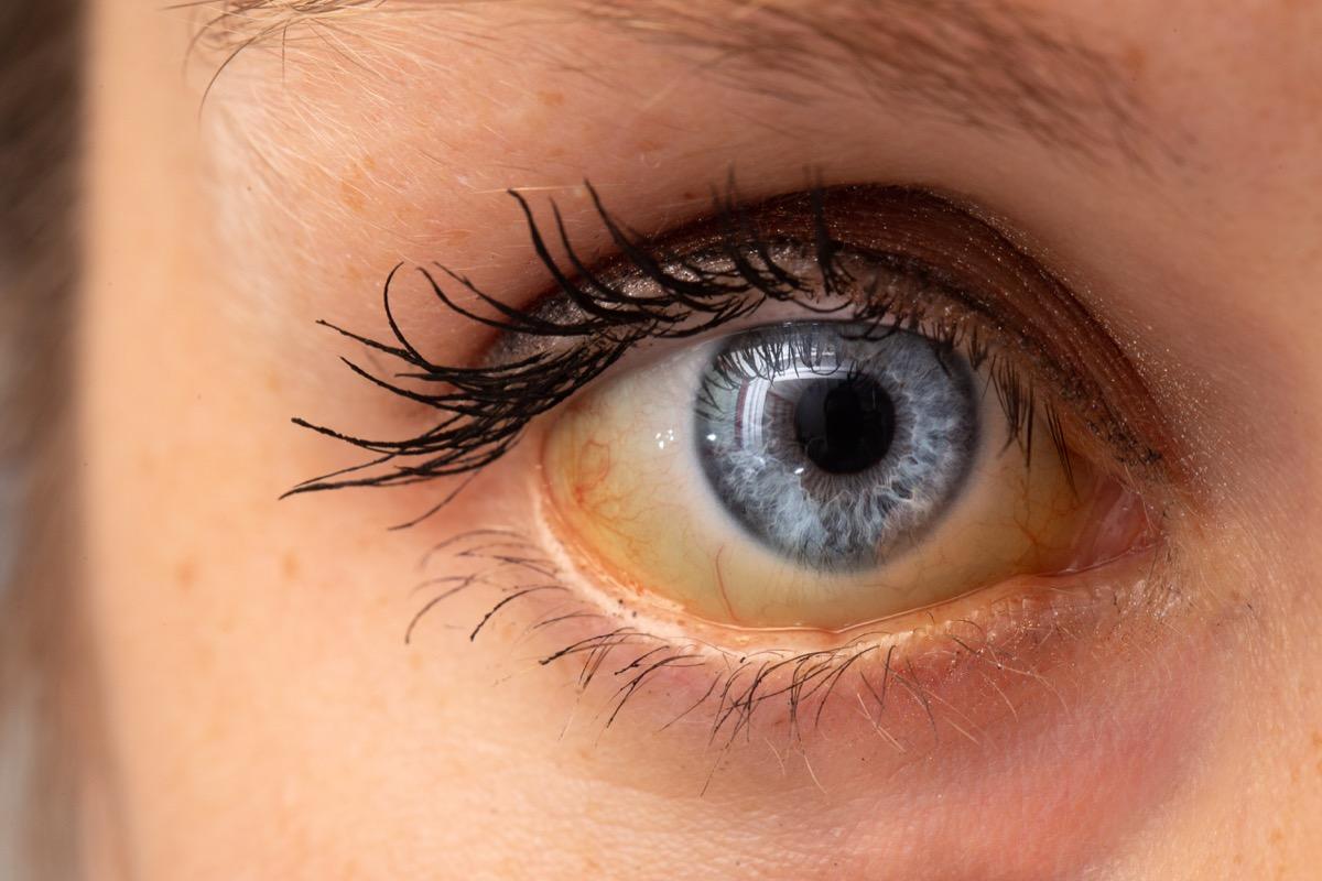 yellow fever jaundice in the eye