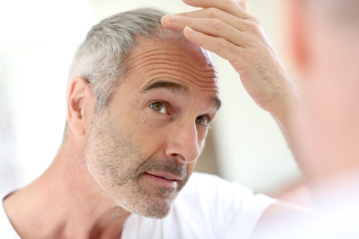 Man looking at hair loss
