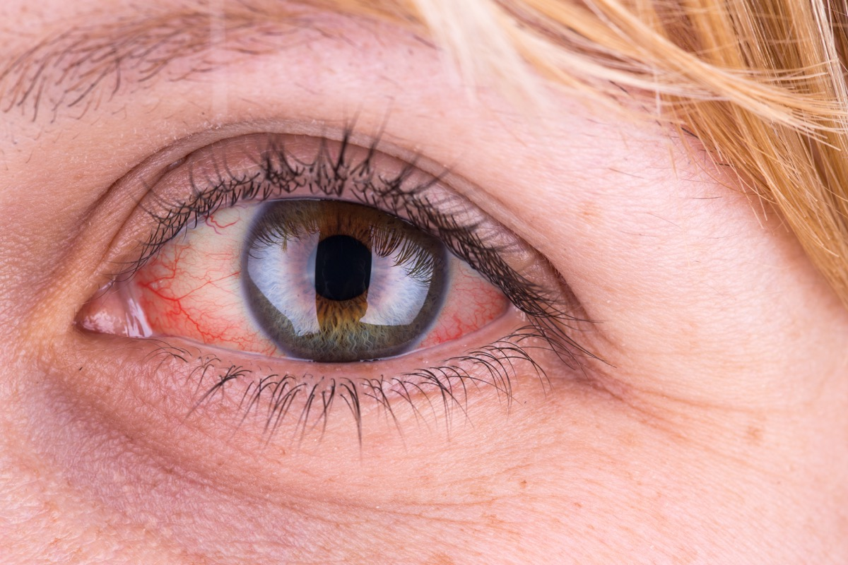 middle aged white woman with red eyes