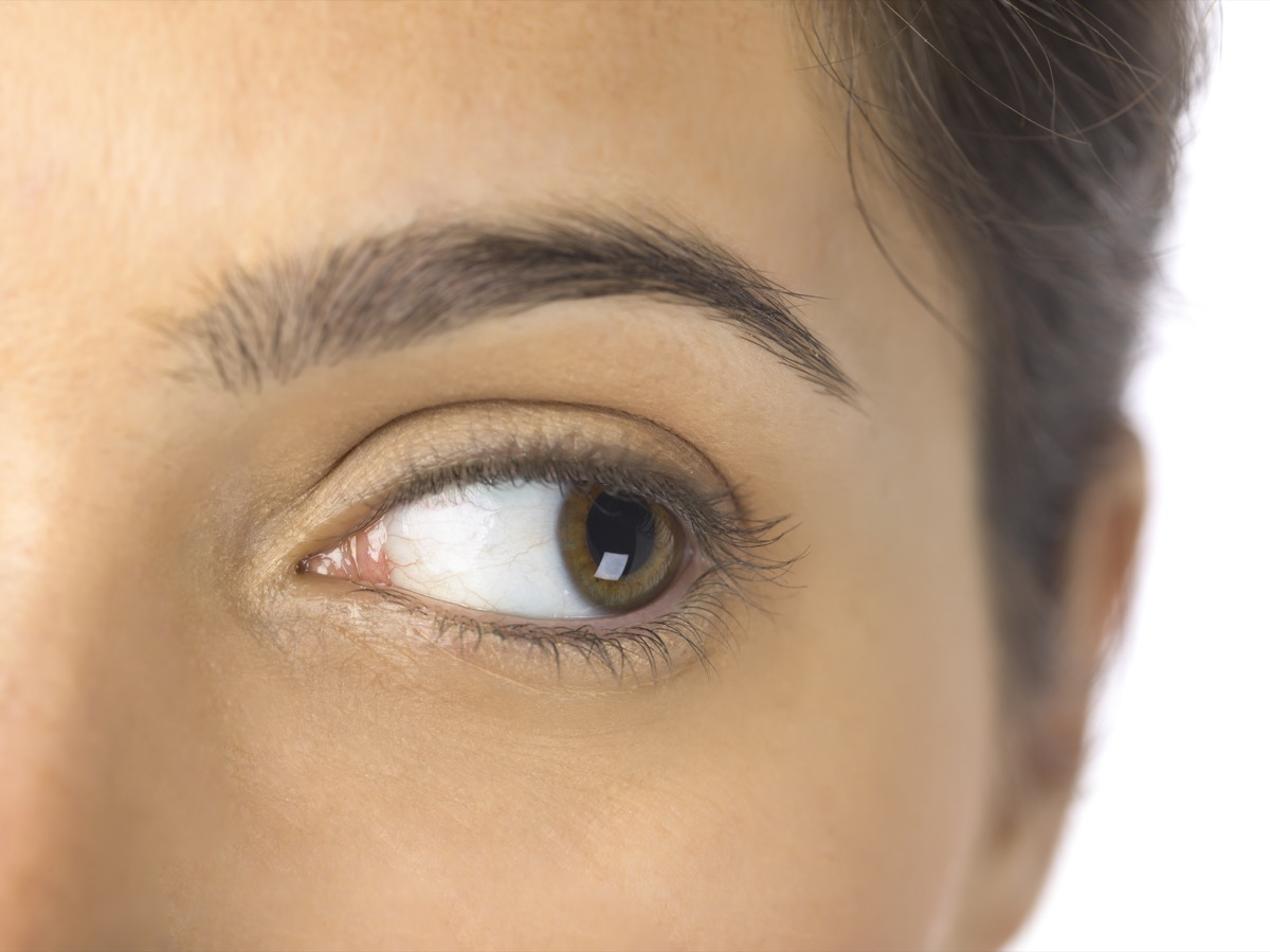 young woman looking to the side with eye movements as strange eye symptoms