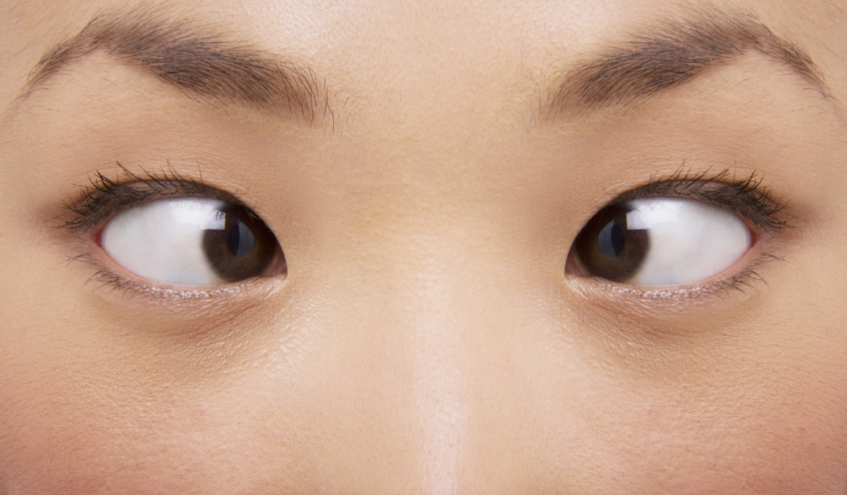 young asian woman with crossed eyes