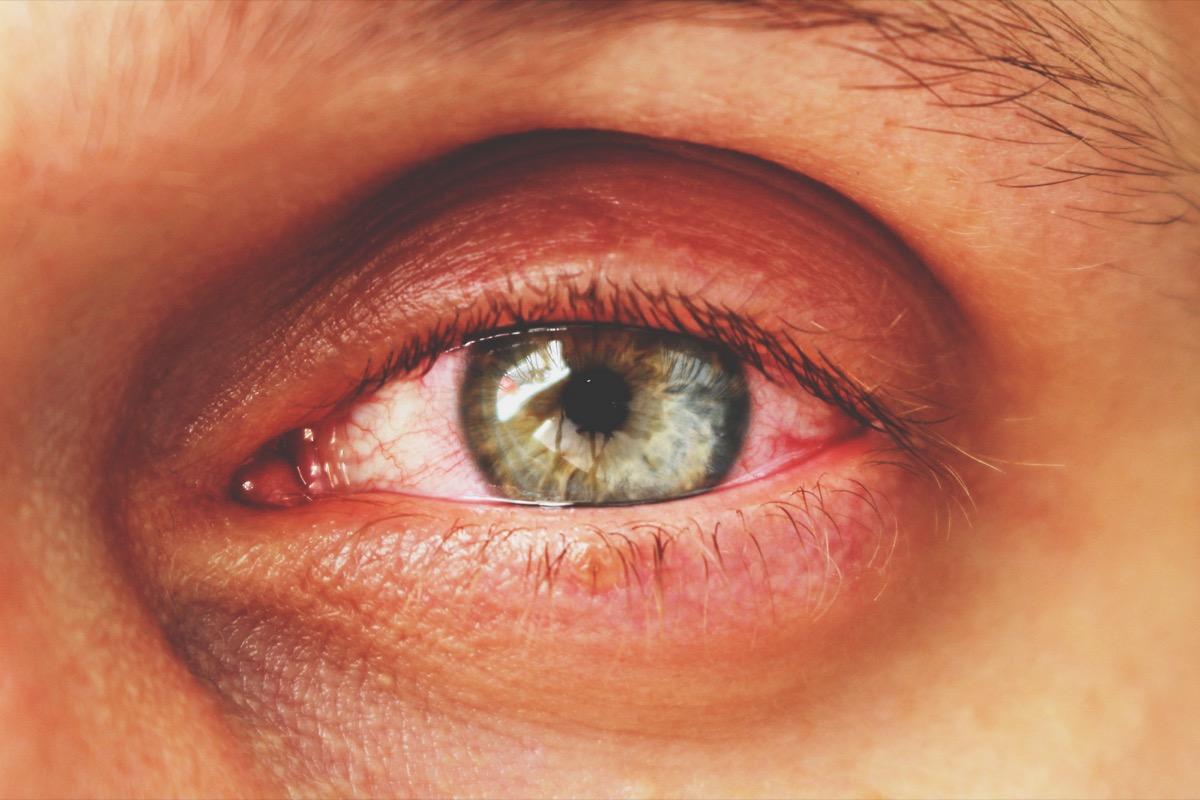 Man with pink eye conjunctivitis