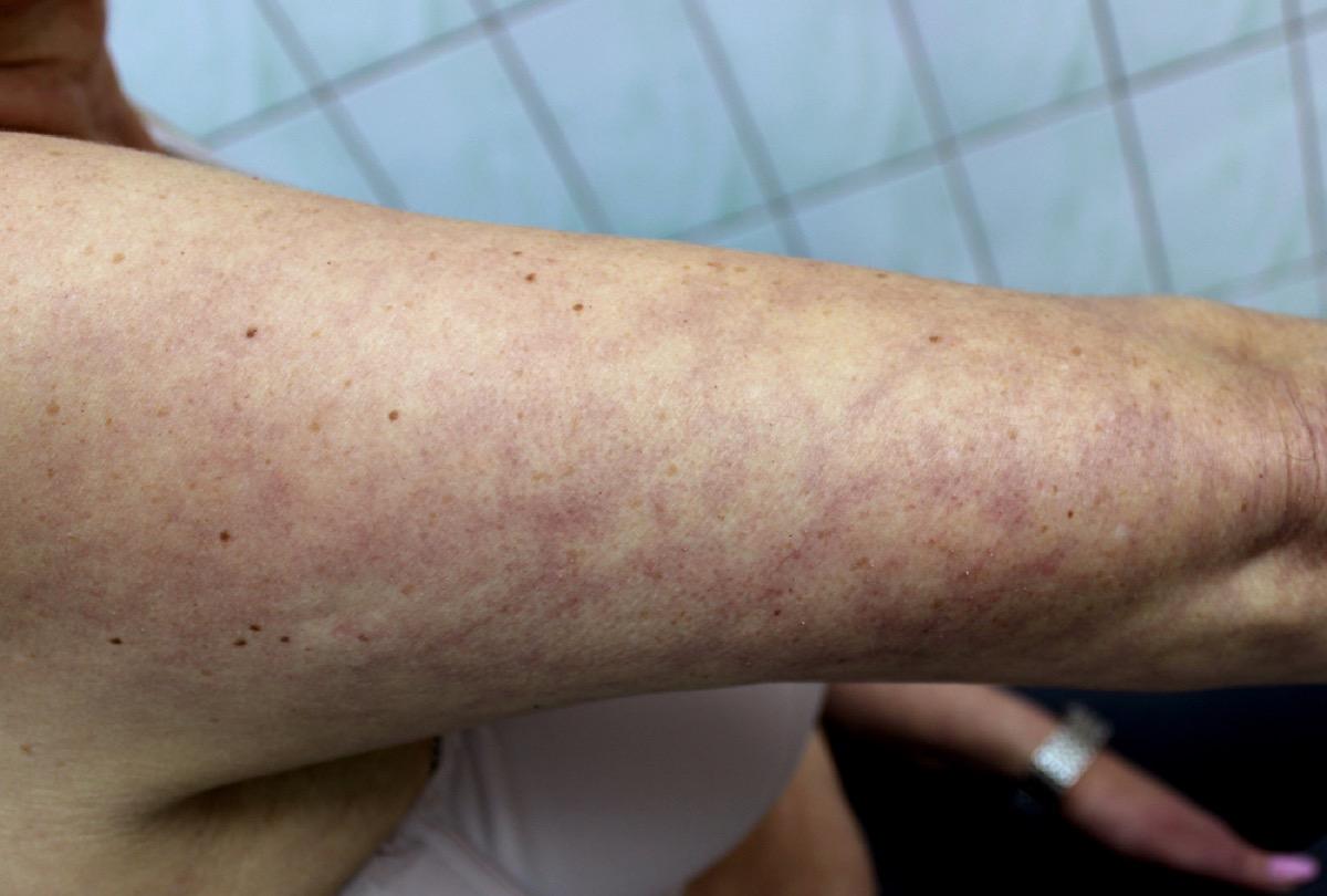 livedo rash on woman's arm