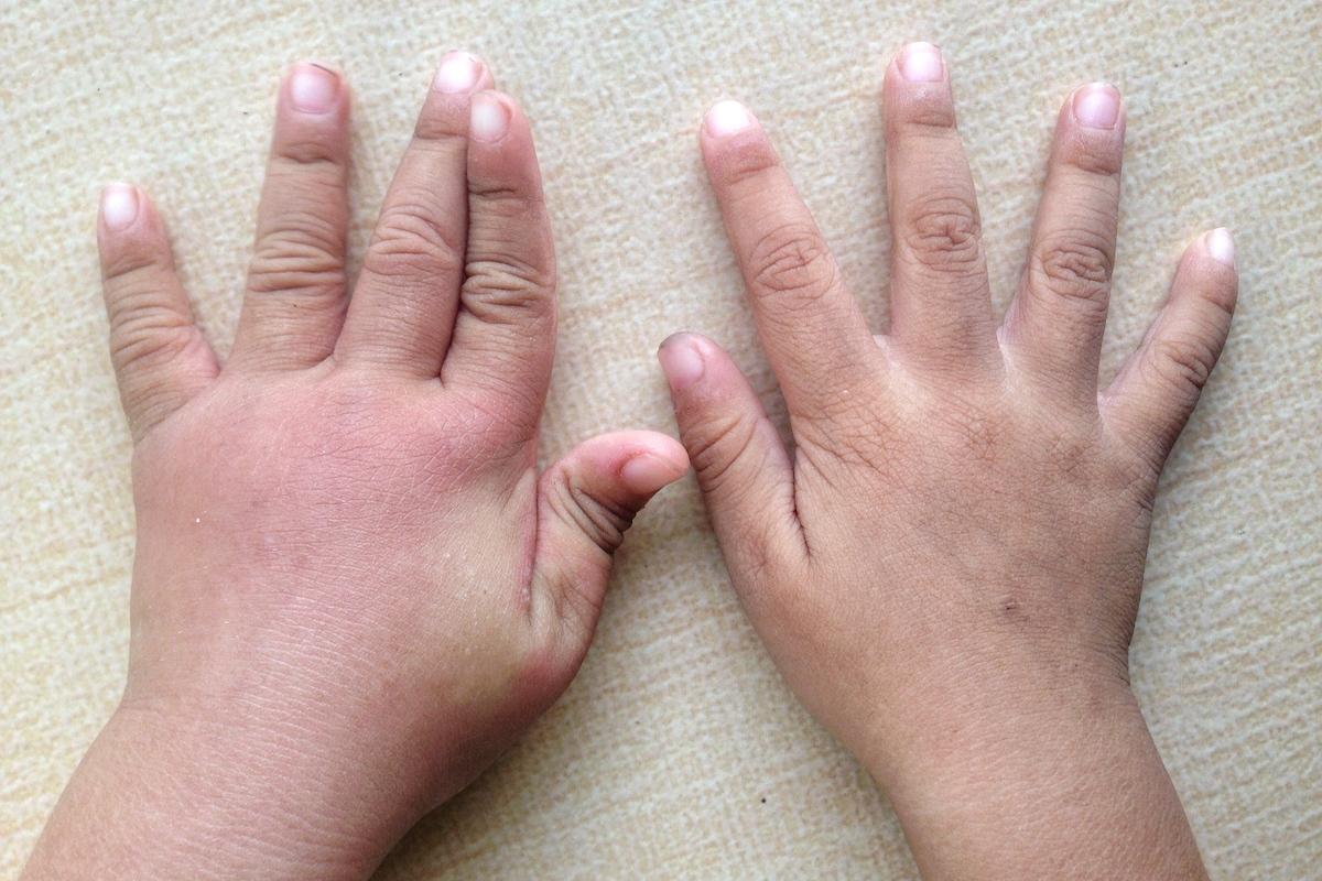 swollen children's hands