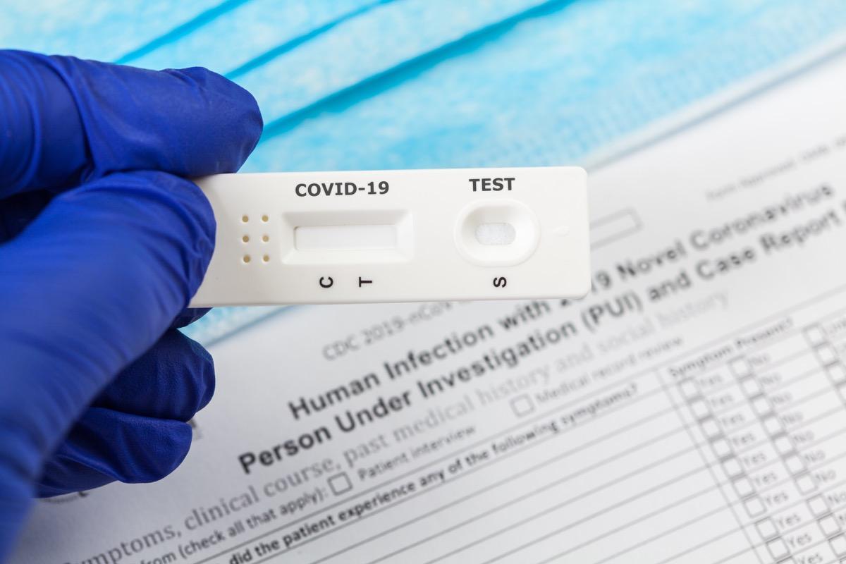 Testing for coronavirus or antibodies