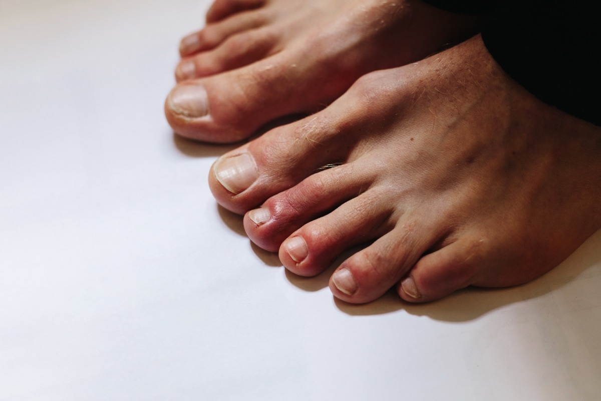Feet with COVID sores