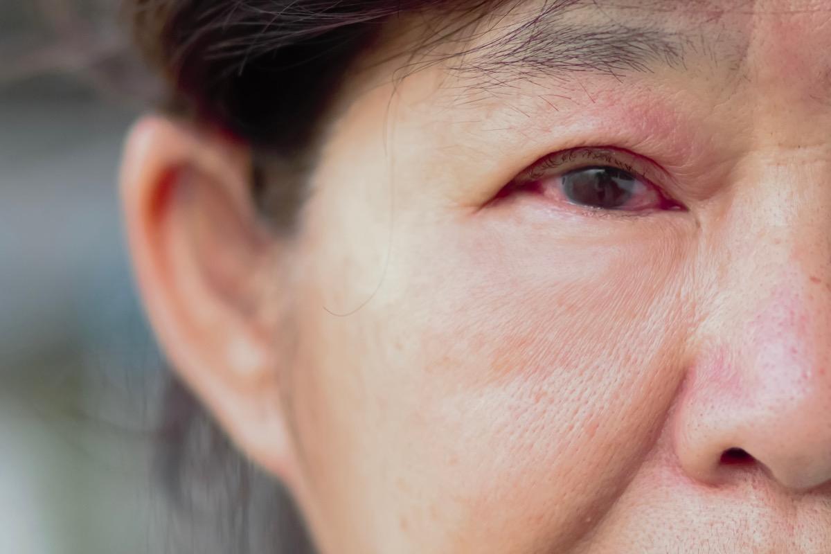 Older woman with pinkeye