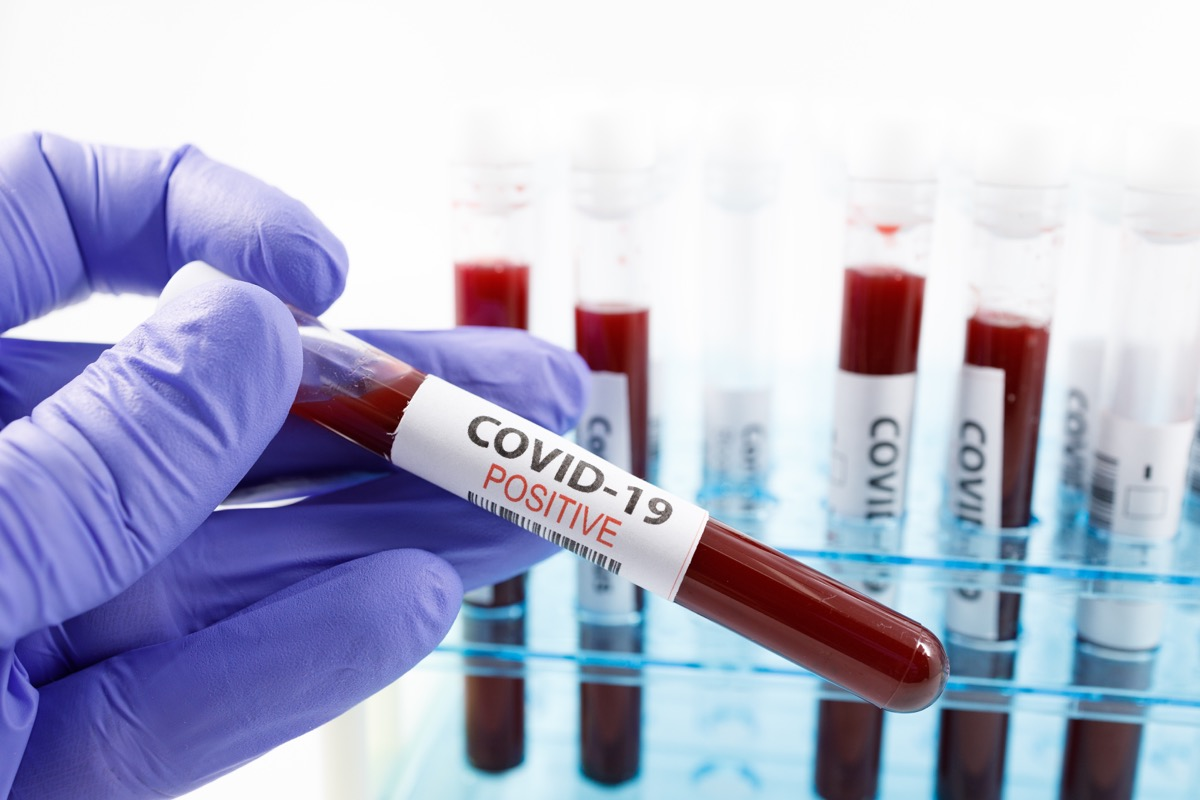 Close up of microbiologist hand with surgical gloves holding a positive blood test result for coronavirus. Test tubes rack with blood sample for covid-19 virus, on white background with copy space.