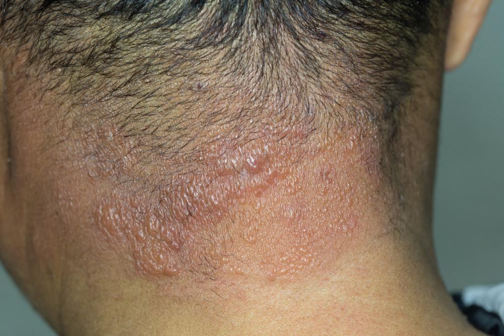 blistering vesicular rash on neck