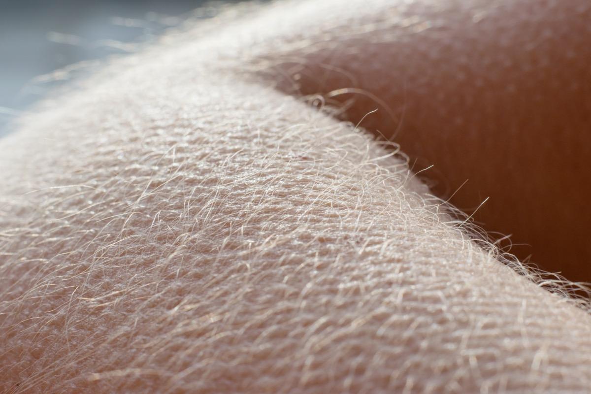 Goosebumps on arm