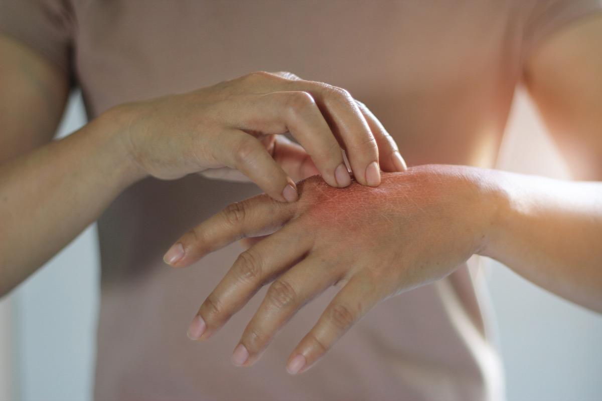 Woman with rash on hand