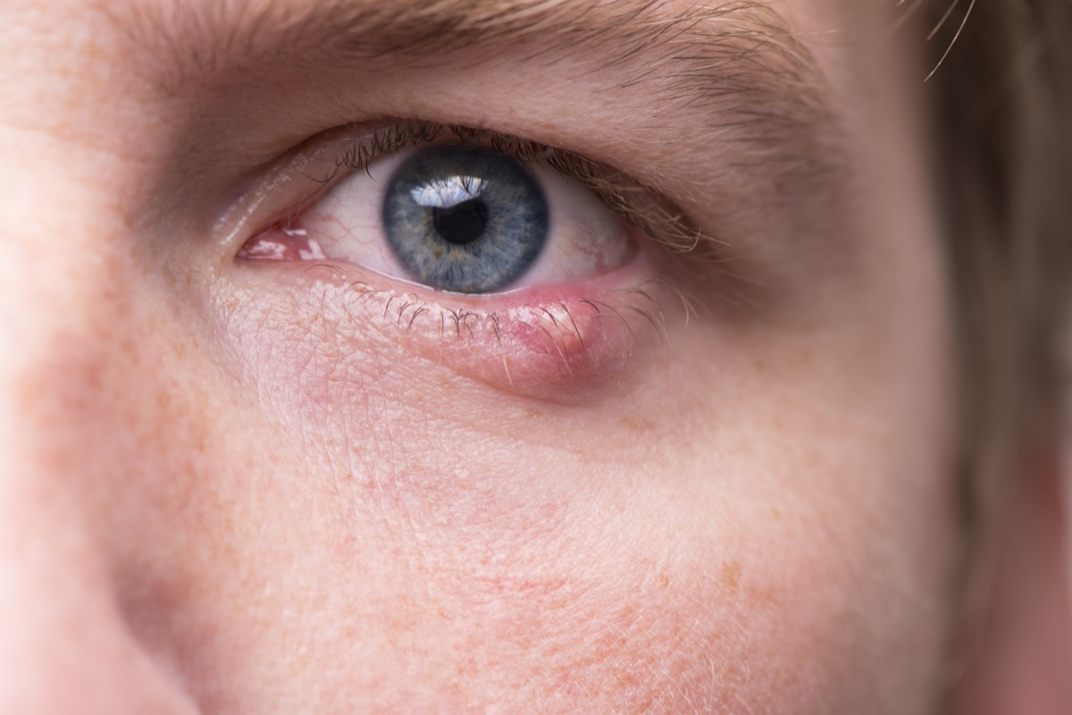 Close up of a man's eye with a bacterial infection of an oil gland in the lower eyelid.