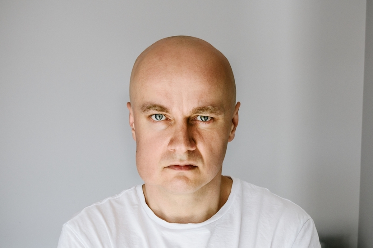 bald man with blue eyes look at camera with swollen lower portion of face