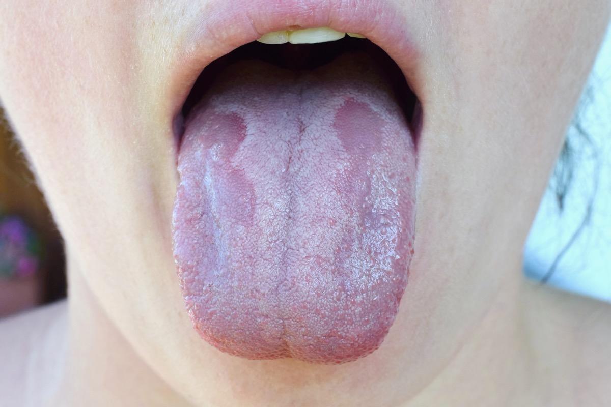 Thrush on woman's tongue