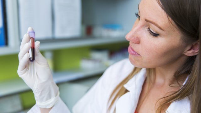 A doctor examines a vial of a blood sample in her hand.