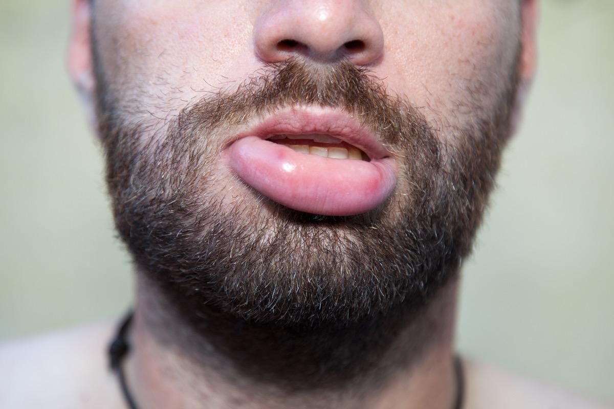 Man with swollen lip