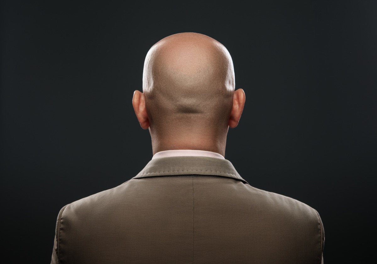 Bald man from behind