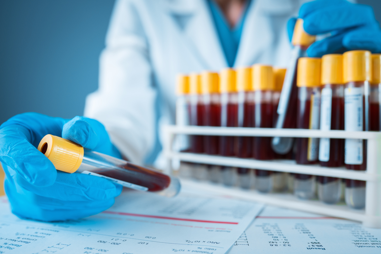 The gloved hand of a lab technician holding a vial of blood in front of a rack of other blood samples.