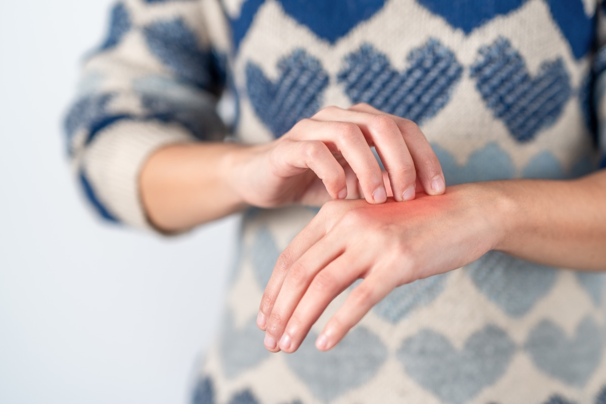 Young woman scratching her itchy hand. Concept skin problem, allergy and dermatology