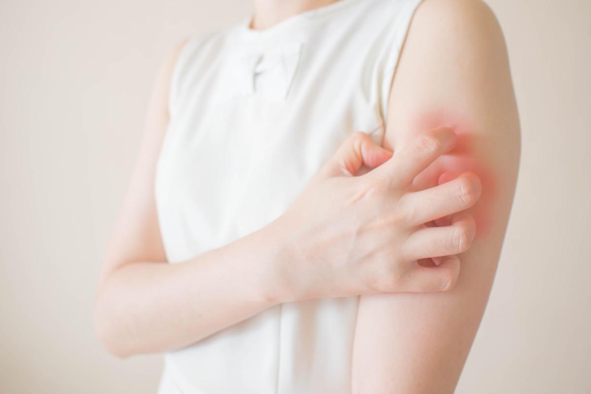 young woman, scratching arm, red rash, wearing white shirt