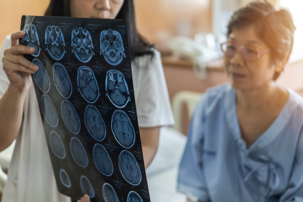 Brain disease diagnosis with medical doctor diagnosing elderly ageing patient neurodegenerative illness problem seeing Magnetic Resonance Imaging (MRI) film for neurological medical treatment